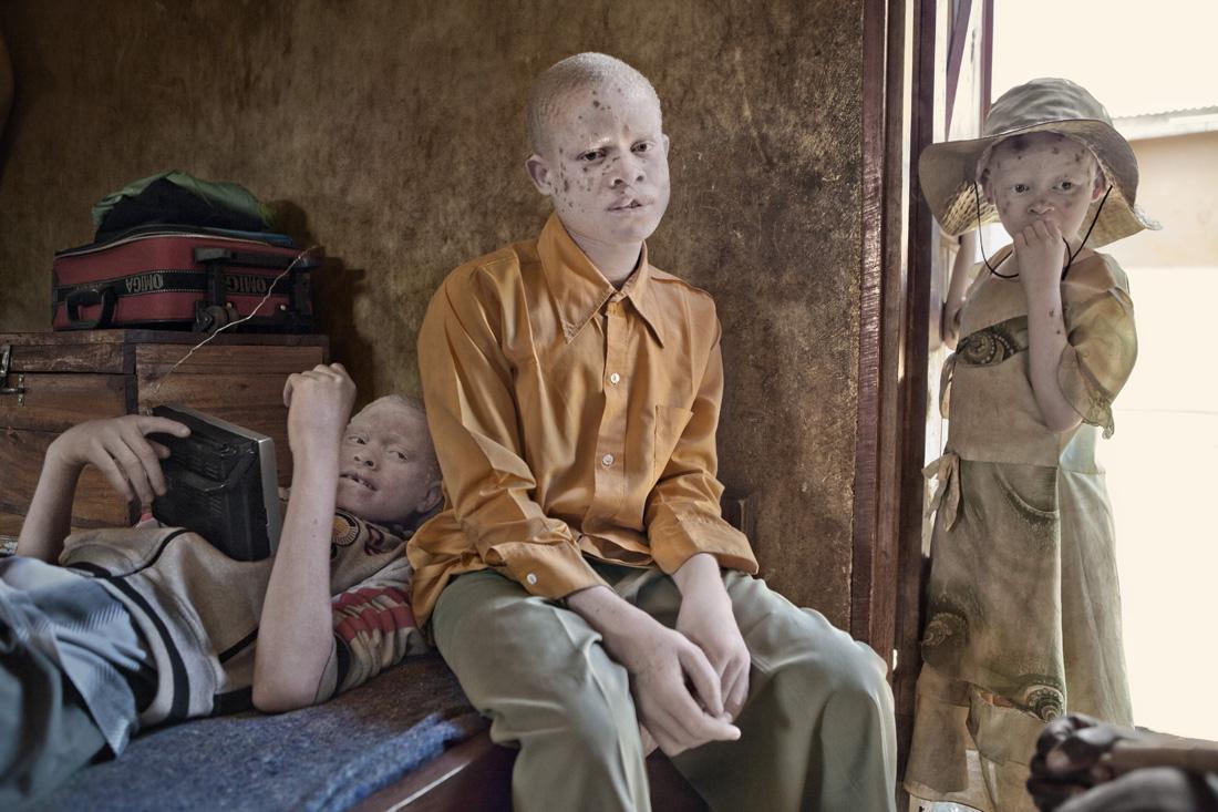 Fotografía de Ana Palacios perteneciente a su proyecto 'Albino'